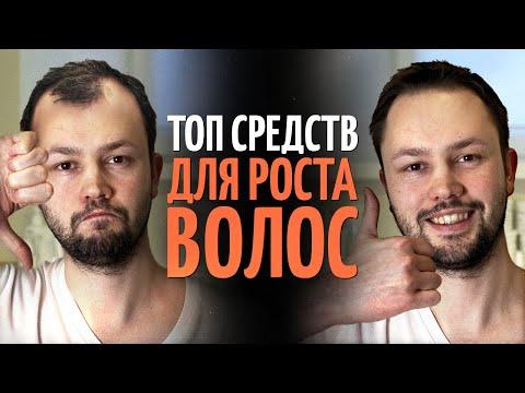 ТОП 5 средств