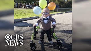 2-year-old with cerebral palsy has clever Halloween costume that celebrates his disability
