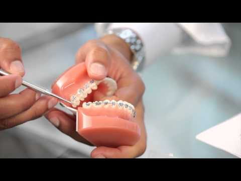 Braces: Broken Bracket, Poking Wire, Braces Pain - Aura Orthodontics
