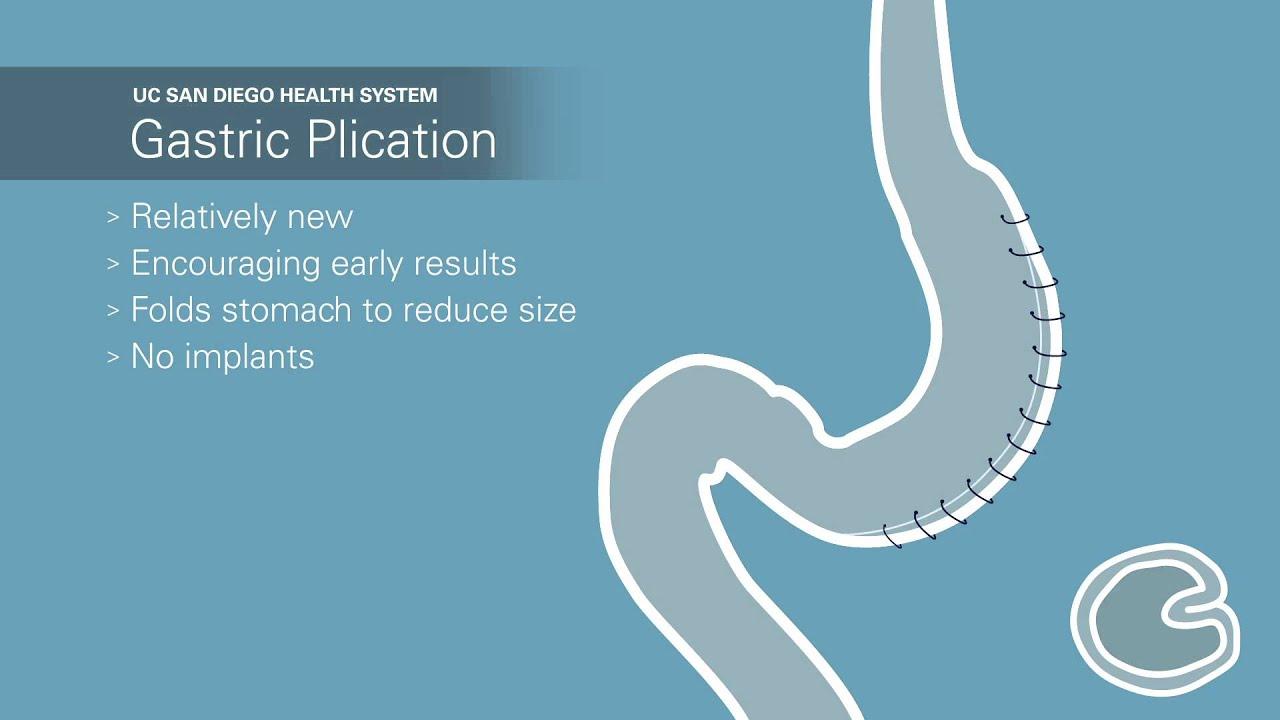 Weight Loss Surgery Minimally Invasive Gastric Plication Animation