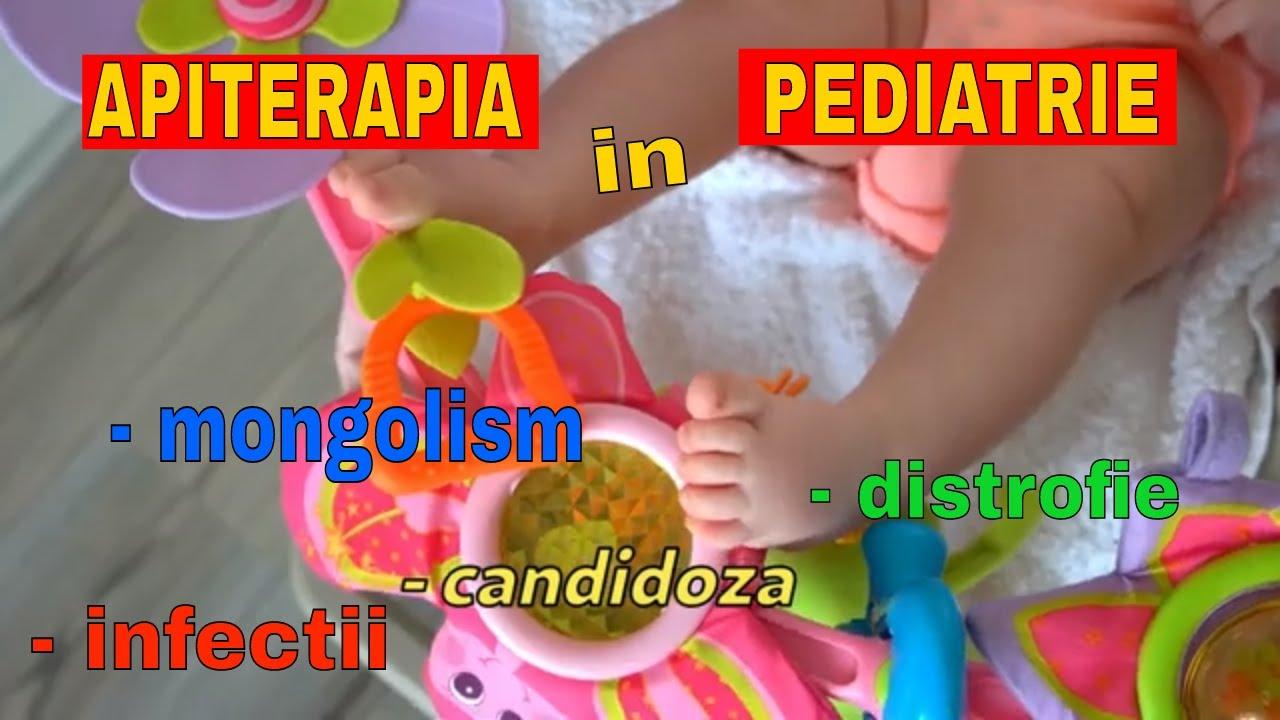 prevenirea helmintiazei pediatrice