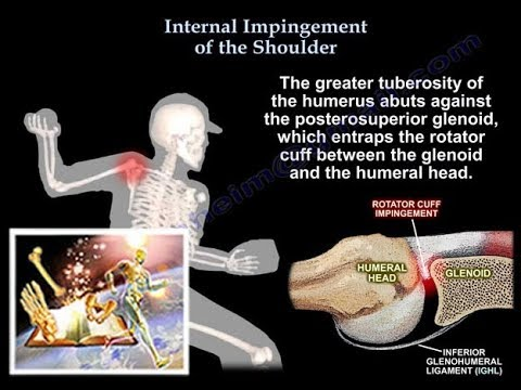Internal Impingement of the Shoulder - Physiopedia