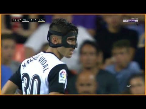 Nacho Vidal VS UD Las Palmas   (18/08/2017)