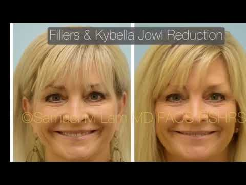 Dallas Fillers and Kybella for Slimming Jowls Before and After
