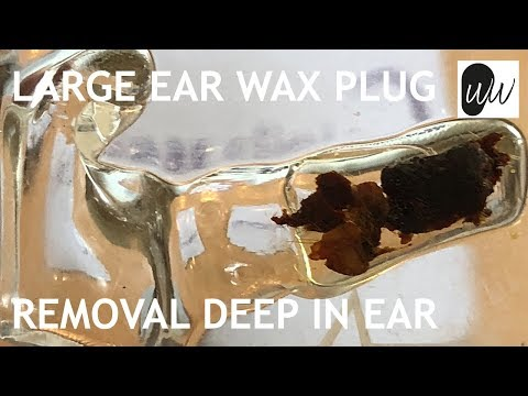 Tricky Ear Wax Removal Microsuction Of Large Plug Of Impacted Ear Wax  - #398