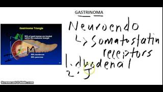 USMLE: What you need to know about Zollinger Ellison syndrome(Gastrinoma) by usmleTeam.