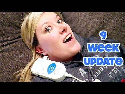 9 WEEK PREGNANCY UPDATE + HEARTBEAT!