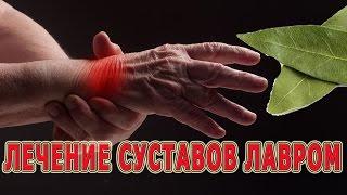 видео Отложение солей в суставах лечение народными средствами: лавровый лист