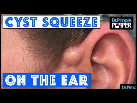 Thumbnail: An Ear-A-Cystable Squeeze!