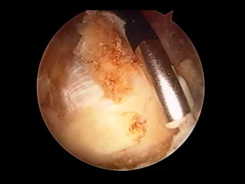 external snapping hip syndrome surgical treatment