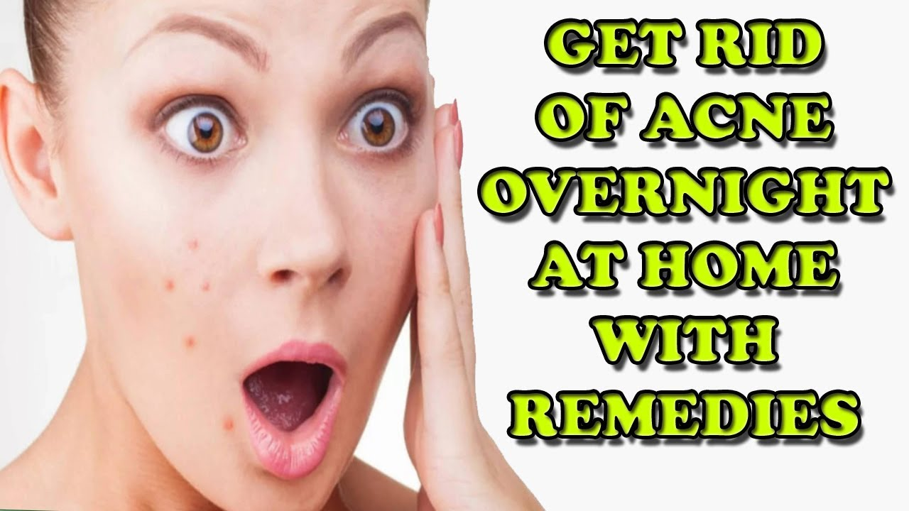 How To Get Rid Of Acne Overnight Youtube