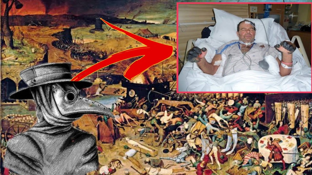 Bubonic Plague Kumitil ng 200 Million na Tao (Black Death)