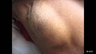 Huge Swelling In Axilla
