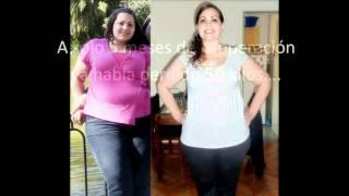 Alejandra´s gastric Bypass (from 286 lbs to 147) - Ale y su transformación (de 130 kilos a 67)