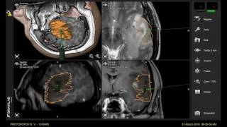 Удаление астроцитомы головного мозга(Хирургическое удаление дифференцированной астроцитомы головного мозга с применением нейронавигации..., 2016-06-09T06:22:32.000Z)