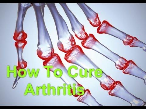 Naadi Vaidya - How To Cure Arthritis