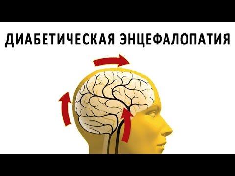 Микроангиопатия головного мозга: что это такое, причины и лечение