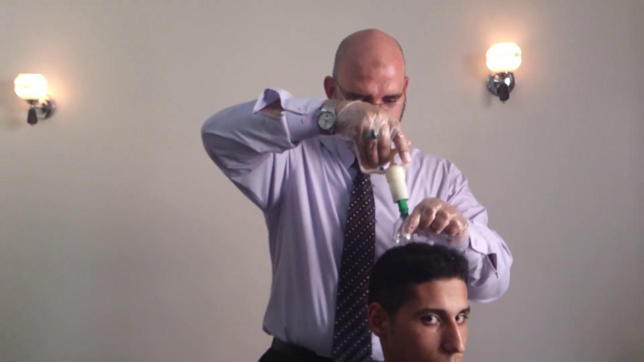 حجامة على اليافوخ أعلى الرأس بدون حلاقة الشعر باستخدام العسل | الدكتور أمير صالح
