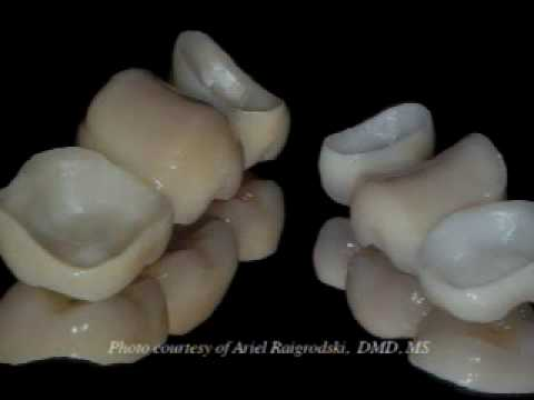 3M Lava Procedure - For Dentists