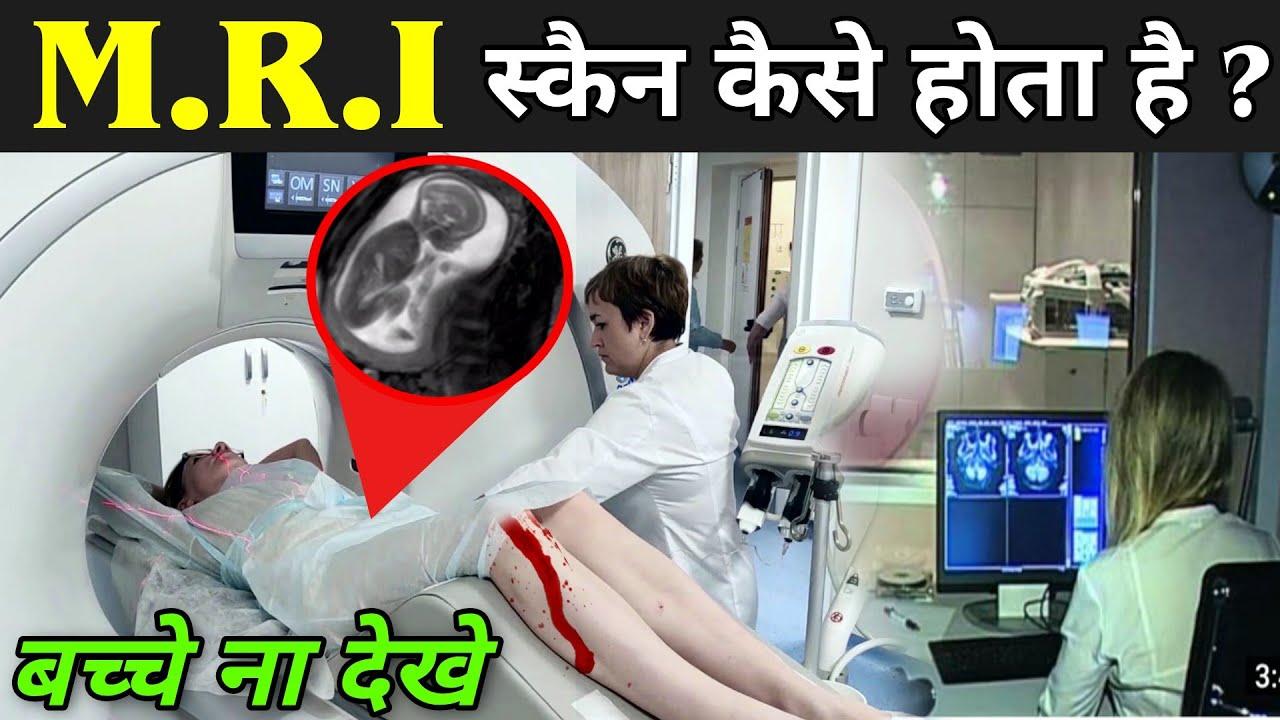 MRI स्कैन कैसे होता है | What Is MRI Scan In Hindi | MRI Scan Kaise Hota Hai