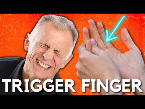 Top 3 Ways to Treat Trigger Finger or a Snapping Finger or Thumb.