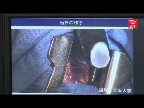 First heart surgery using iPS cells