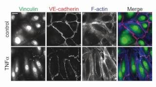biosights: March 19, 2012 - Vinculin minds the endothelial gap