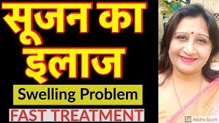 सूजन ठीक करने के उपाय | Fast Swelling Treatment Natural on Face, Eyes, Leg, Hand, and Whole Body