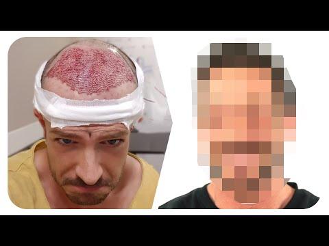 Simon Teichmann kommentiert seine Haartransplantation!