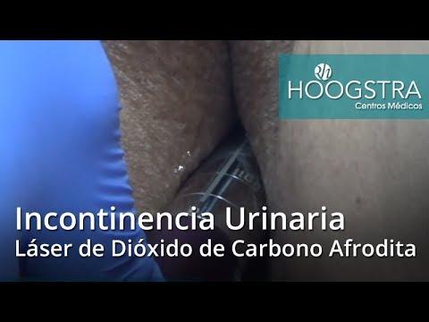 Incontinencia Urinaria - Láser de Dióxido de Carbono Afrodita (18132)
