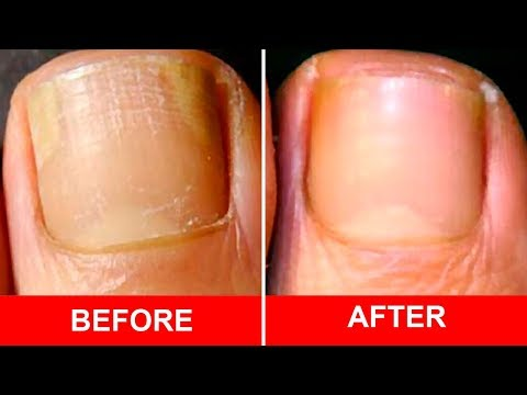 Cure Foot and Toenail Fungus Fast With These Simple Recipe
