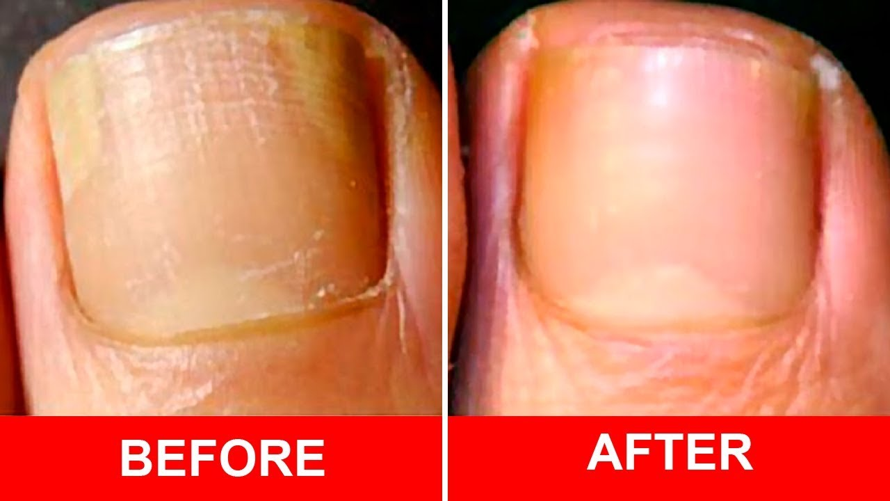 Cure Foot and Toenail Fungus Fast With These Simple Recipe - YouTube