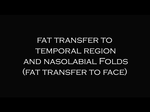 Fat Transfer to Face |  Plastic Surgeon Dr. Katzen Beverly Hills | Los Angeles | Las Vegas