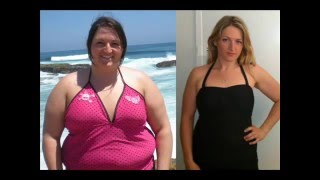 2yrs   The Truth about Weight Loss Surgery