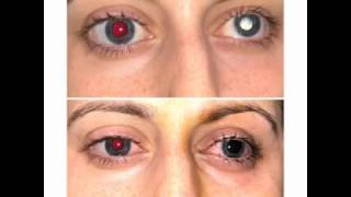Corneal tattoo with femtosecond laser