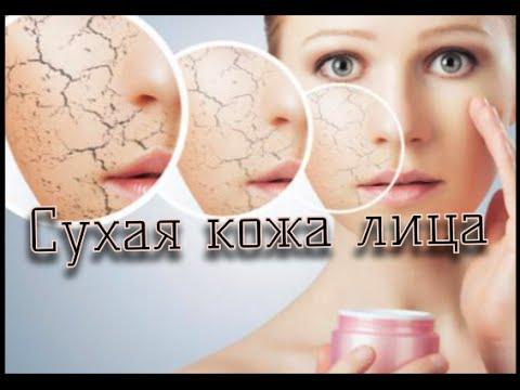 Уход за руками: что делать, если кожа сохнет и трескается
