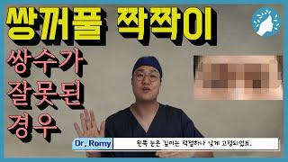 쌍꺼풀 재수술의 가장 흔한 원인인 비대칭. 수술로 야기…