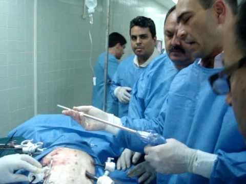 Curso de Cirugía de Pared Abdominal (Venezuela)