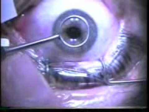 Laser Eye Surgery How Does It Work Youtube