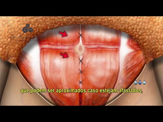 Abdominoplastia - @tododiaplastica  (Dra Mariana Fernandes   CRM SC 18651    RQE 18864)