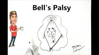 Bell's Palsy Explained Simply
