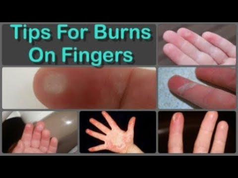 How to cure finger burns and home remedies for burns on fingers how to cure finger burns and home remedies for burns on fingers naturally ccuart Image collections