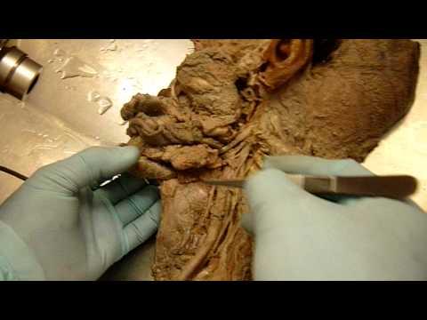 anatomia aplicada de cabeza y cuello-UNFV-odonto - YouTube