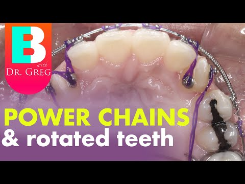 braces-power-chain-to-rotate-canine-teeth