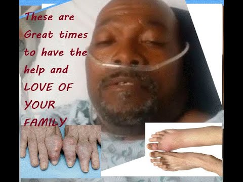 GOUT OLD , SICK  ALONE NO FAMILY BUT HIGH VALUE and other health conversations