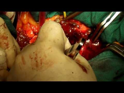 Abdominal aortic aneurysm open repear