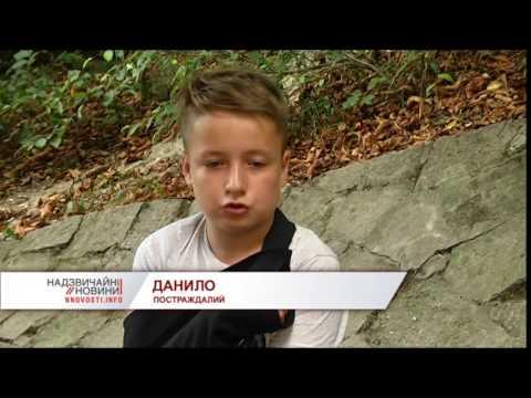 На Львівщині у школі одна дитина відірвала пальці іншій