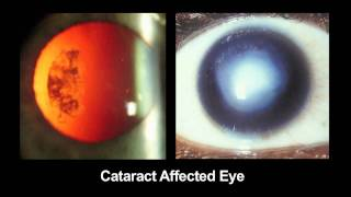 CATRA: Cataract Maps with Snap-on Eyepiece for Mobile Phones(, 2011-04-03T02:09:37.000Z)