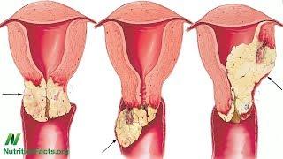 Proč se u vegetariánů méně často vyskytují infekce HPV?