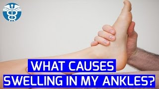 My Personal MD: What Causes Swelling in my Ankles? | Podiatry